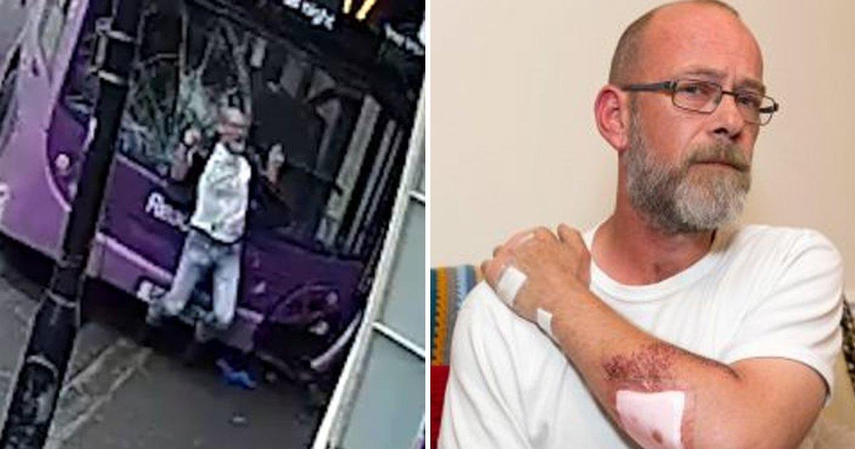 8 112.jpg?resize=300,169 - 이층 버스에 세게 치였는데도 일어나서 술마시러 술집을 간 남성 (영상)