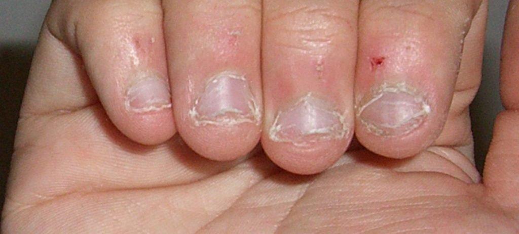 Un hombre de 28 años, a punto de morir por morderse las uñas