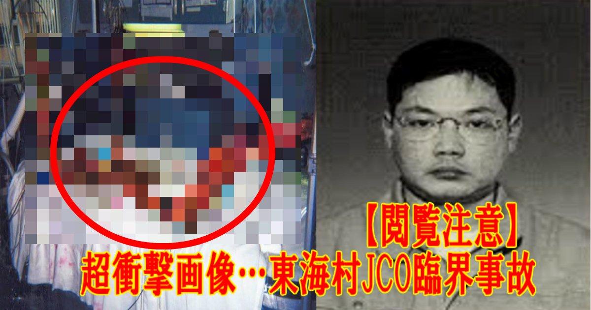 a 21.jpg?resize=1200,630 - 【閲覧注意】超衝撃画像…東海村JCO臨界事故「被爆治療83日の記録」画像あり