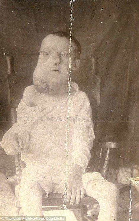 The boy is believed to haveBurkitt
