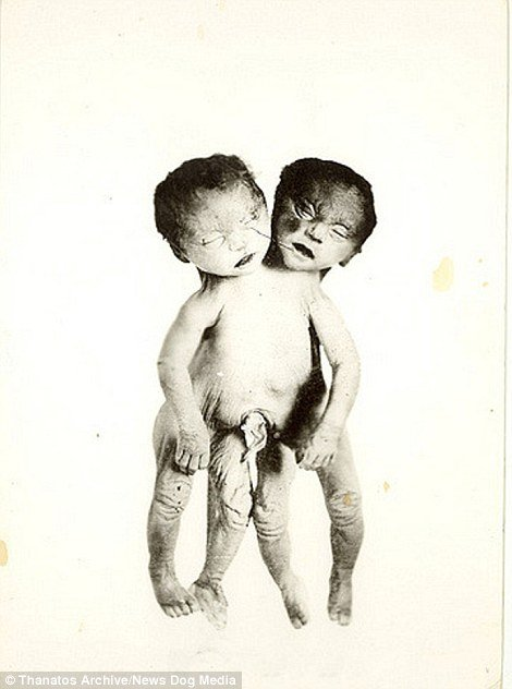 Some of the more disturbing images in the archive feature babies who were stillborn but still included in the shows