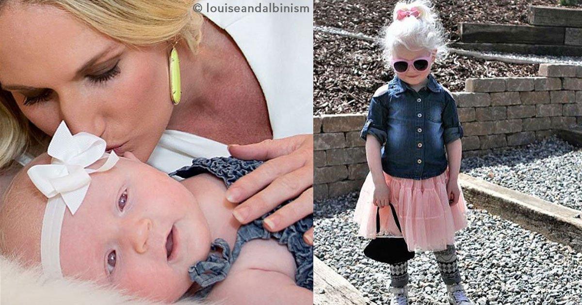 cover 3.jpg?resize=300,169 - La madre de una pequeña comparte en sus redes sociales lo que vivió cuando supo que su hija tendría albinismo