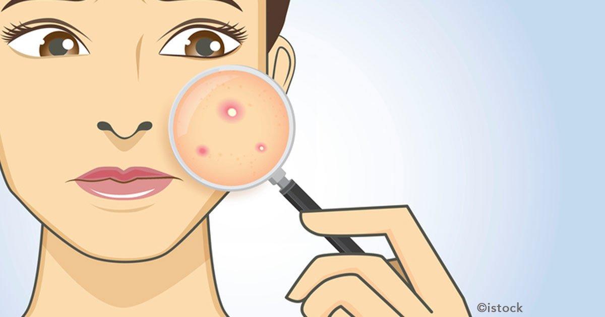 cover 9.jpg?resize=300,169 - Si tienes acné en tu rostro puede ser señal de que tus órganos están fallando, aquí te diremos que áreas se conectan