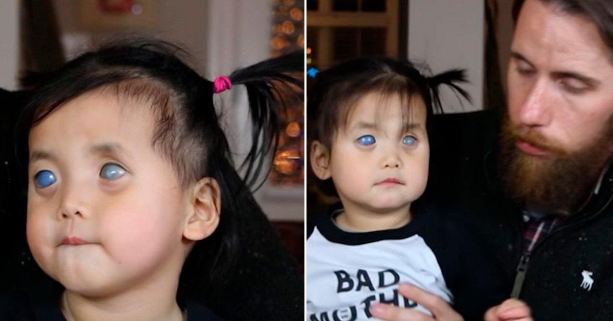 cover22 1.jpg?resize=300,169 - Esta bebita nació con los ojos color plata y la abandonaron, una pareja al ver su fotografía cambió su destino