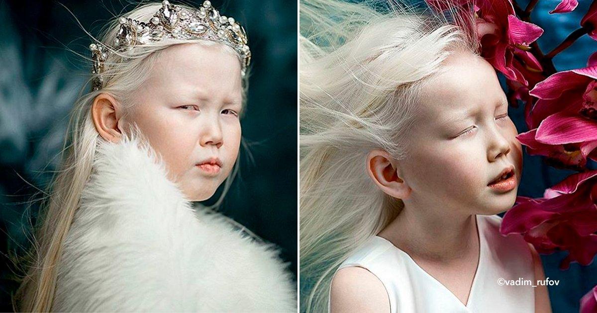 """cover22alb.jpg?resize=300,169 - Por ser albina la llaman """"Blanca Nieves"""", ahora recibe varias ofertas para incursionar en el mundo del modelaje"""