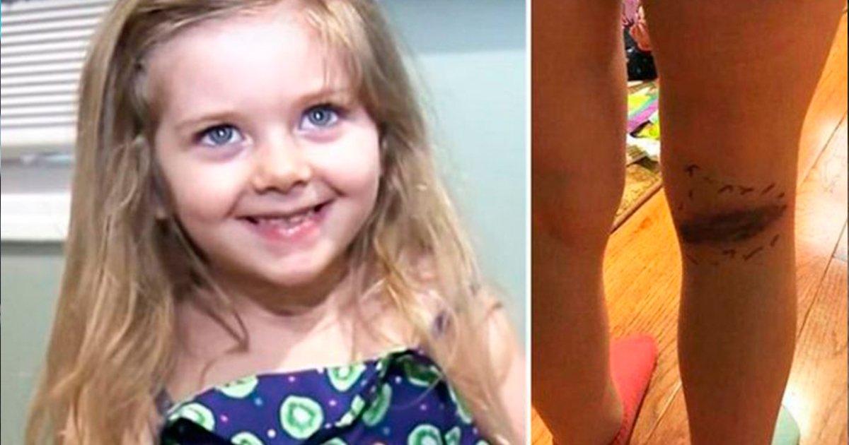 cover22knee.jpg?resize=732,290 - Si el pediatra no hubiera visto esos síntomas a tiempo, podría haber sido fatal para esta pequeña