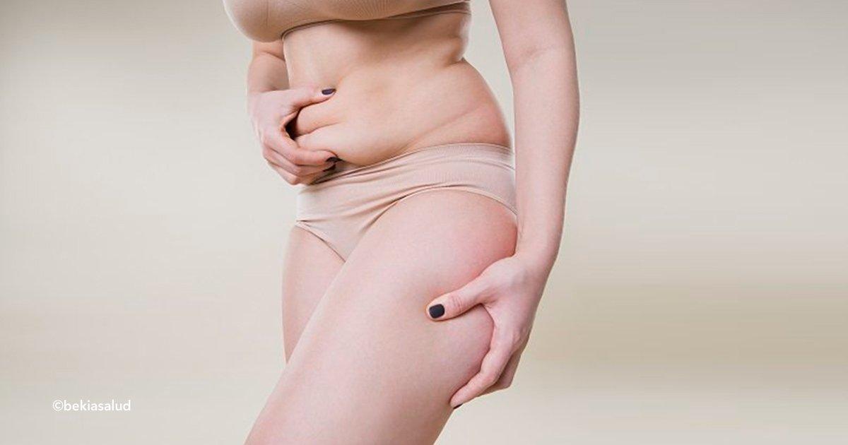 cover22lip 2.jpg?resize=300,169 - Es una patología confundida con obesidad o celulitis, por eso es importante saber si tienes lipedema y tratarlo a tiempo