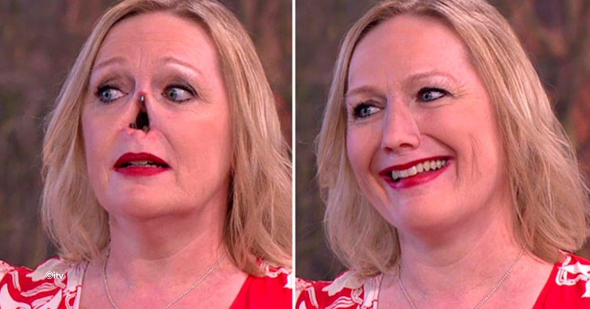 cover22nar.jpg?resize=574,582 - La increíble prótesis magnética que le cambió la vida a esta mujer sin nariz