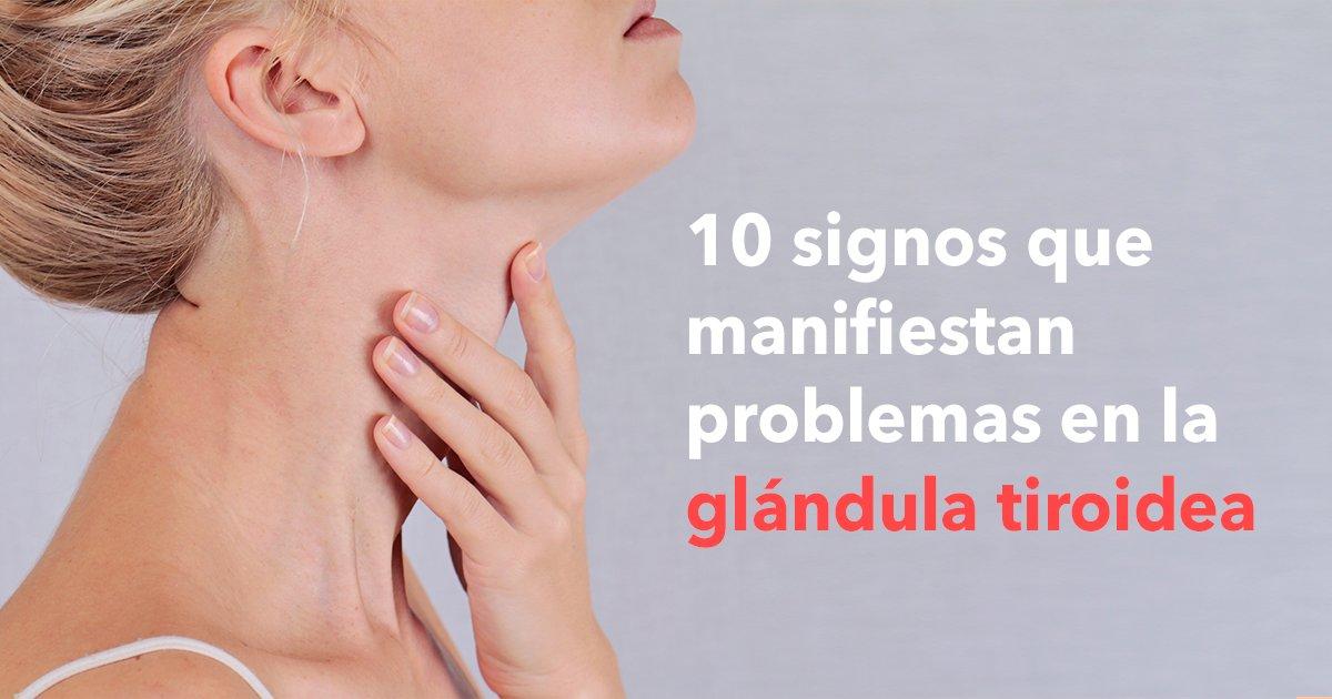 cover22tiro.jpg?resize=300,169 - Estos son 10 signos que manifiestan problemas en la glándula tiroidea