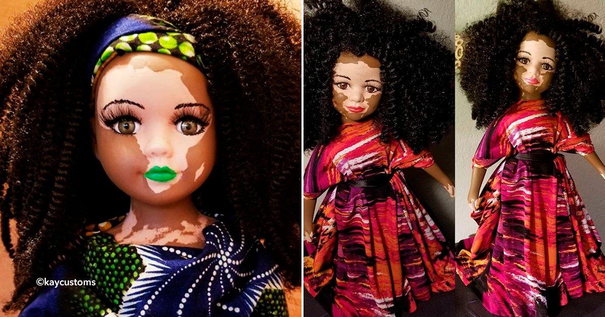 cover22vit.jpg?resize=1200,630 - Creó una serie de muñecas para que las niñas y adolescentes superen el vitíligo en su piel