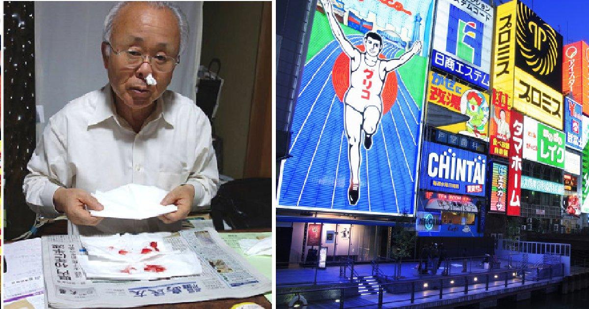 "dfd 1.png?resize=648,365 - ""일본 오사카 주민 800명이 방사능에 노출됐다. 그리고 나는 매일 코피를 흘린다"""