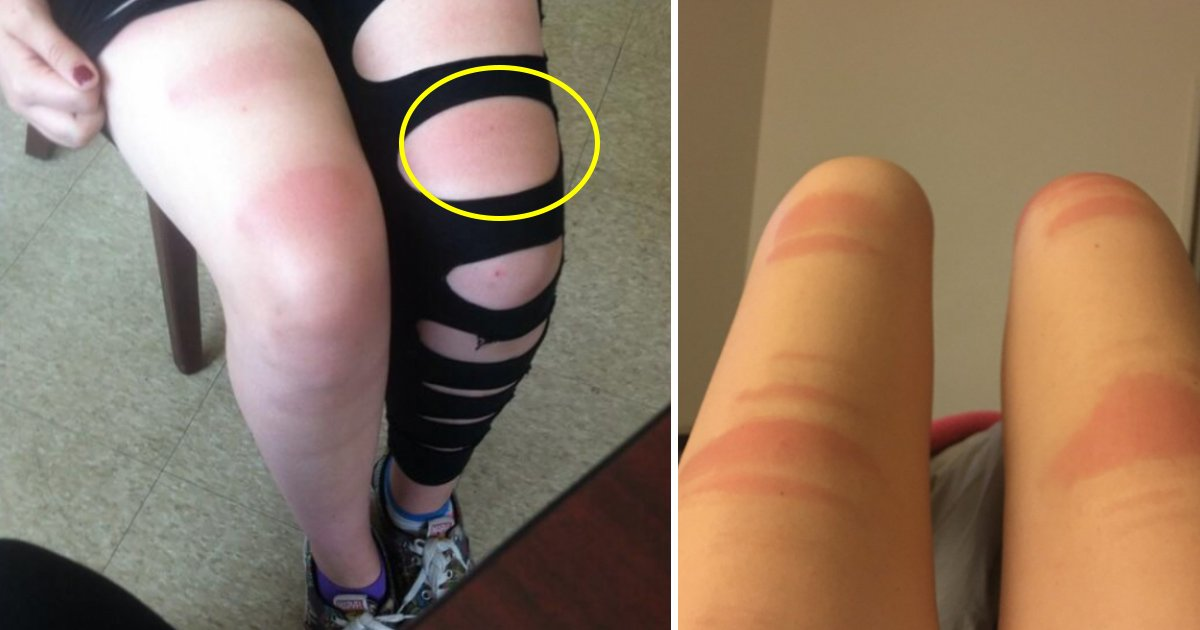 jeans.jpg?resize=412,232 - Here Is Why You Should Not Wear Ripped Jeans In The Sun
