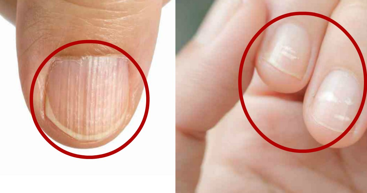 nail signs.jpg?resize=1200,630 - Fingernail Types And How They Might Indicate Something Is Wrong With Your Health