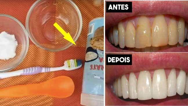 plaque.jpg?resize=1200,630 - Placa dental: use este remédio caseiro para se livrar de ir ao dentista
