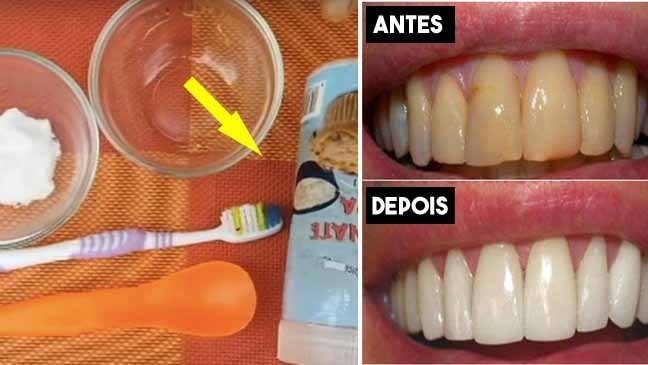 plaque.jpg?resize=636,358 - Placa dental: use este remédio caseiro para se livrar de ir ao dentista
