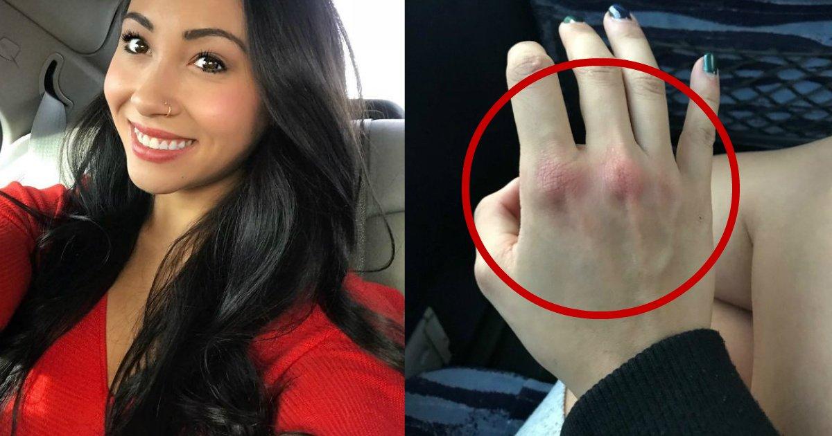 punching sexual assault.jpg?resize=412,232 - Une femme partage des photos de ses doigts enflés après avoir été victime d'une agression sexuelle