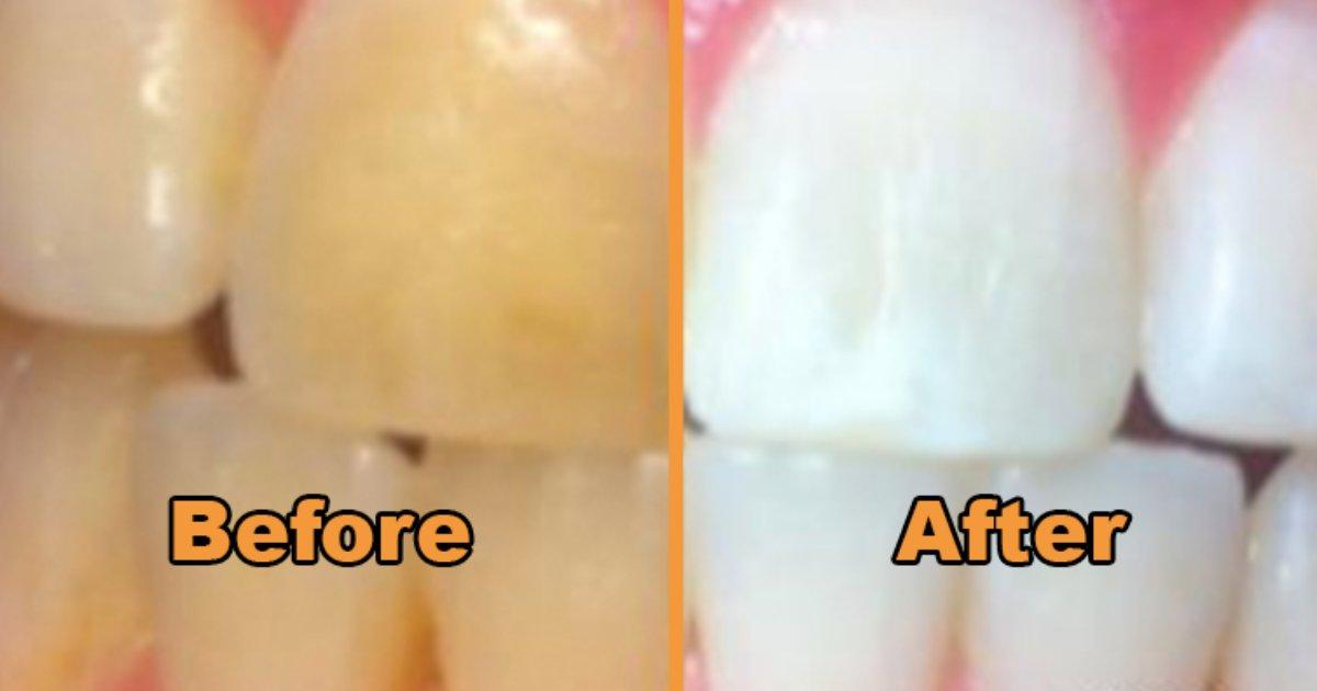 tee.png?resize=1200,630 - Voici un moyen simple de blanchir vos dents en utilisant des ingrédients naturels que vous pouvez trouver à la maison!