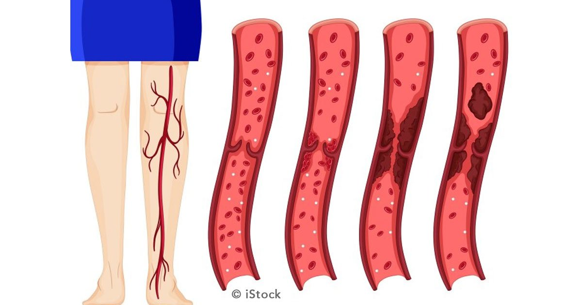 trombosis portada.jpg?resize=1200,630 - 9 factores determinantes de riesgo de padecer trombosis venosa profunda y cómo prevenirla