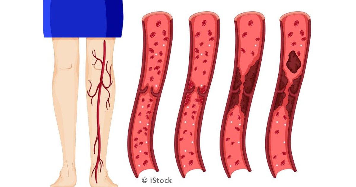 trombosis portada.jpg?resize=412,232 - 9 factores determinantes de riesgo de padecer trombosis venosa profunda y cómo prevenirla