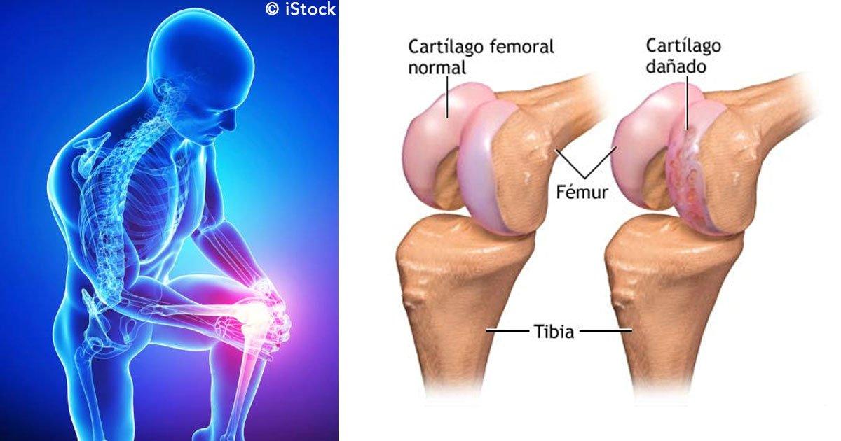 untitled 1 121.jpg?resize=412,232 - Con este increíble remedio casero podrás regenerar los cartílagos de las rodillas y de la cadera