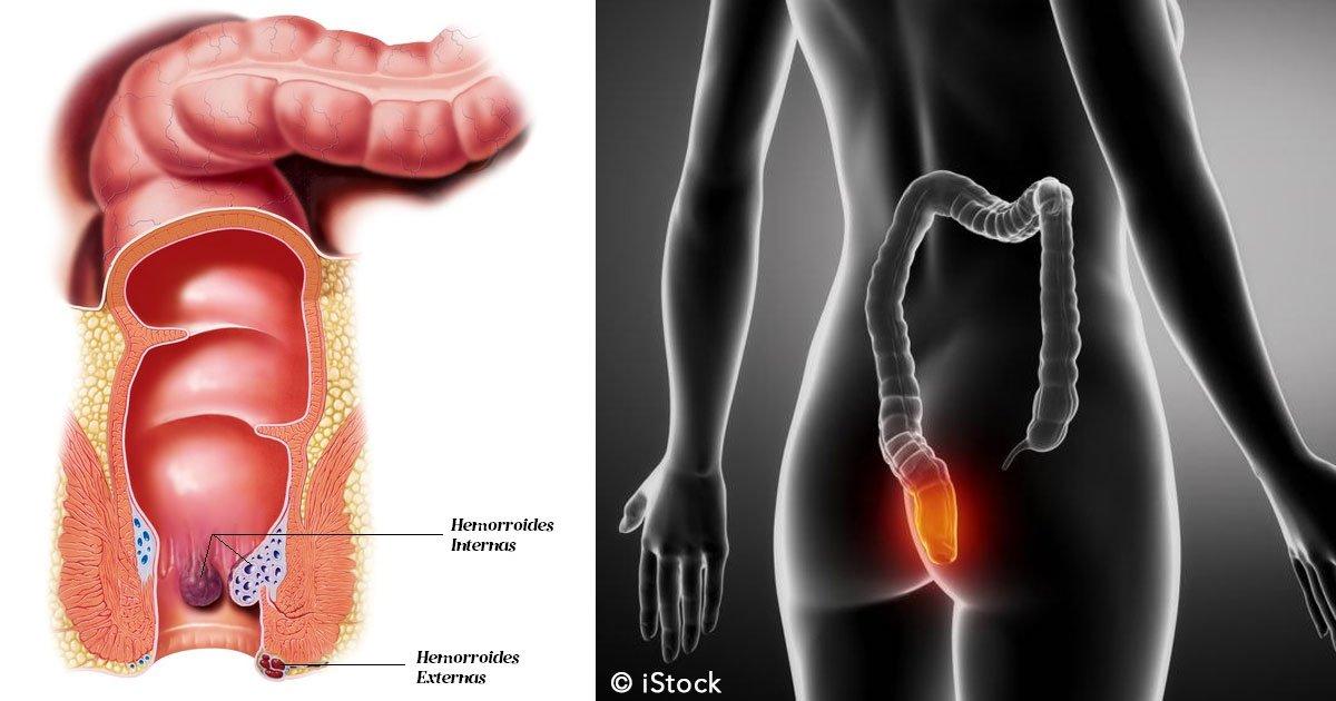 untitled 1 21.jpg?resize=648,365 - 6 simples tratamientos para prevenir las hemorroides y aliviar las molestias