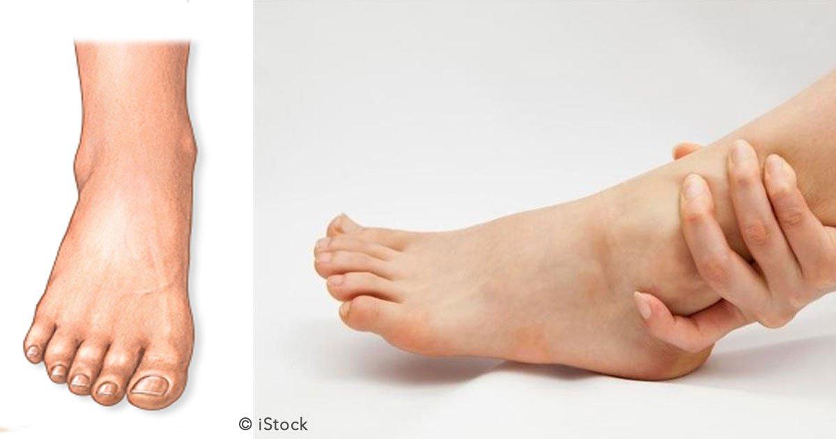 untitled 1 49.jpg?resize=648,365 - Fallas renales, coágulos de sangre y otros motivos que causan hinchazón de pies y piernas