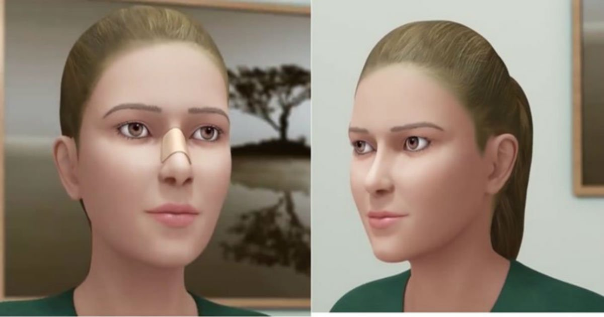 55 3 1.jpg?resize=412,232 - Thinking Of Getting Plastic Surgery? Seeing This Will Make You Think Twice About Getting A Nose Job