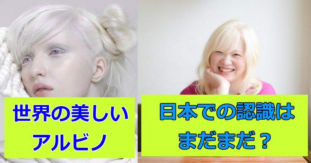 arubino.png?resize=1200,630 - 世界中で活躍するアルビノのモデル!日本人まとめ