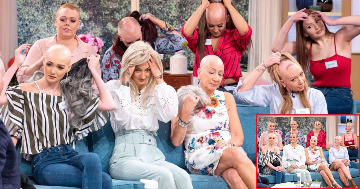 bald and beautiful women warriors who suffer from hair loss remove their wigs live on tv.jpg?resize=300,169 - Ces femmes chauves et belles sont des guerrières qui souffrent de la perte des cheveux ; elles enlèvent leurs perruques en direct à la télévision