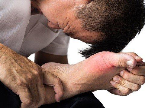 「痛風 治療法」の画像検索結果