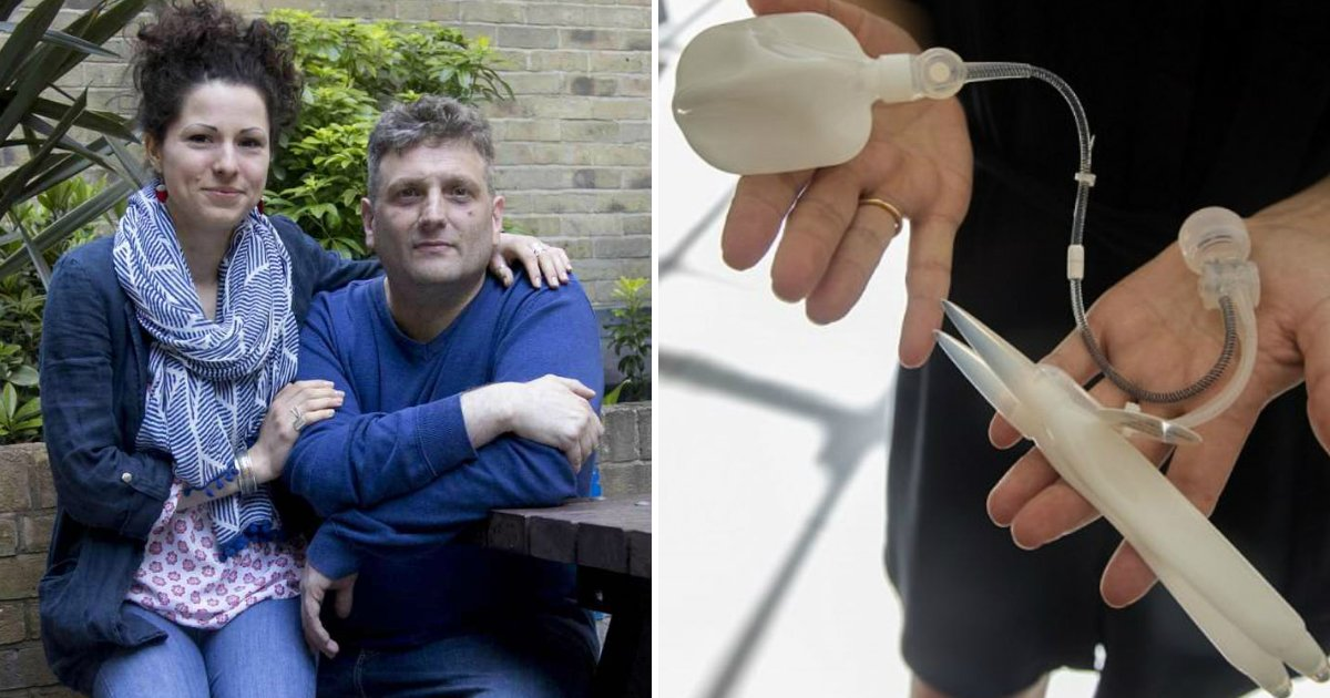 bionic manhood.jpg?resize=636,358 - Man Born Without Genital Will Finally Experience It For The First Time After Being Fitted With A Bionic Manhood