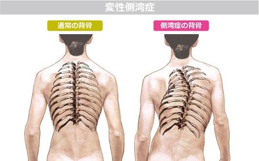 「子供 脊椎側湾症」の画像検索結果
