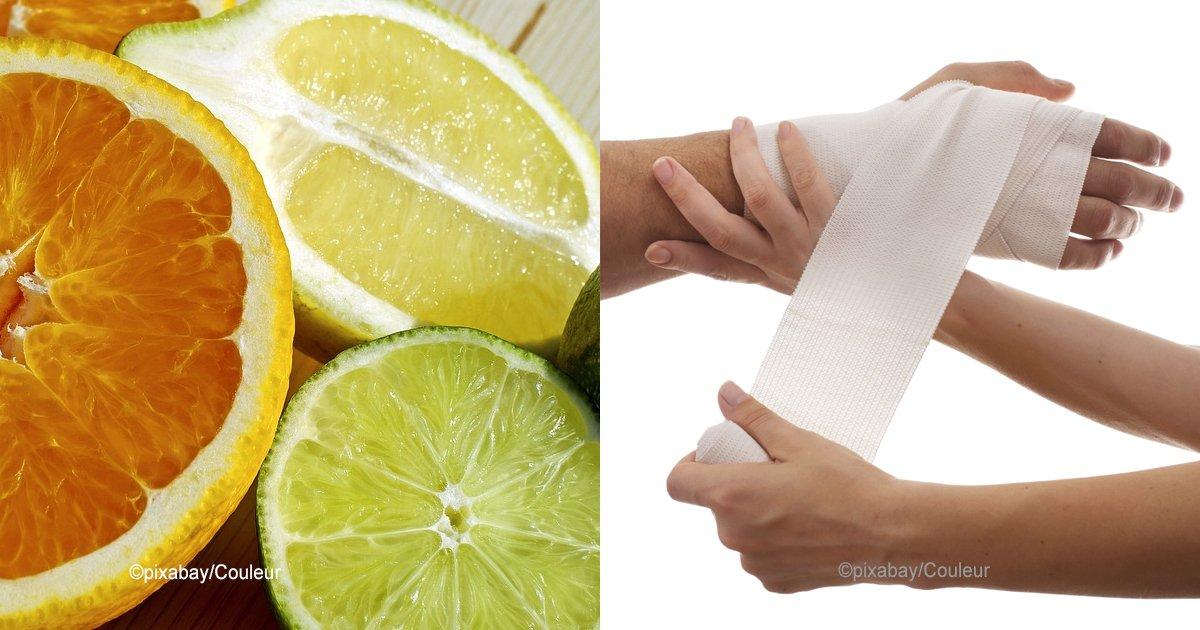 citric.jpg?resize=648,365 - Cítricos y sol: la peligrosa combinación que puede tener graves consecuencias en tu salud y en tu piel