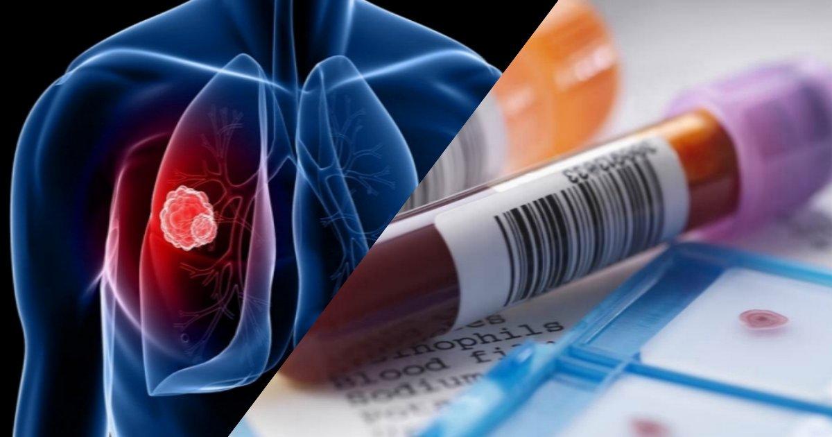 collage.png?resize=412,232 - Un nouveau test sanguin peut détecter 10 types différents de cancers avant que quelqu'un ne tombe malade