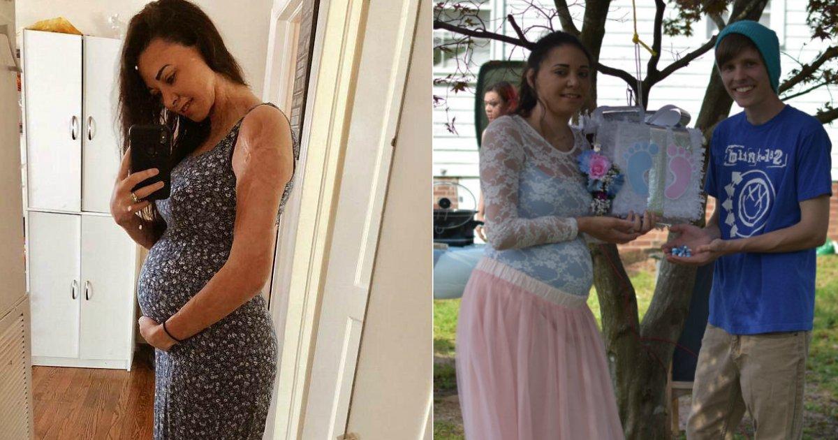 harley mallow.jpg?resize=1200,630 - Une survivante brûlée qui a subi des blessures à deux ans est enceinte de son premier enfant