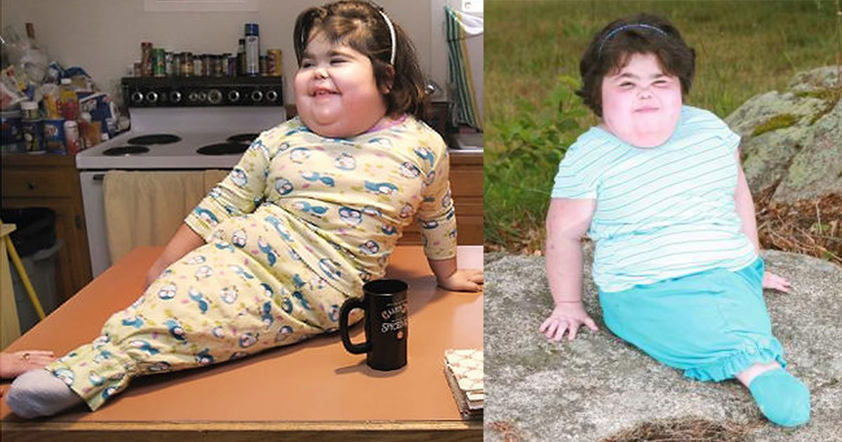 mermaid girl shiloh challenged all medical odds for 10 years.jpg?resize=300,169 - 'Mermaid Girl' Shiloh Pepin Challenged All Medical Odds And Survived For 10 Years