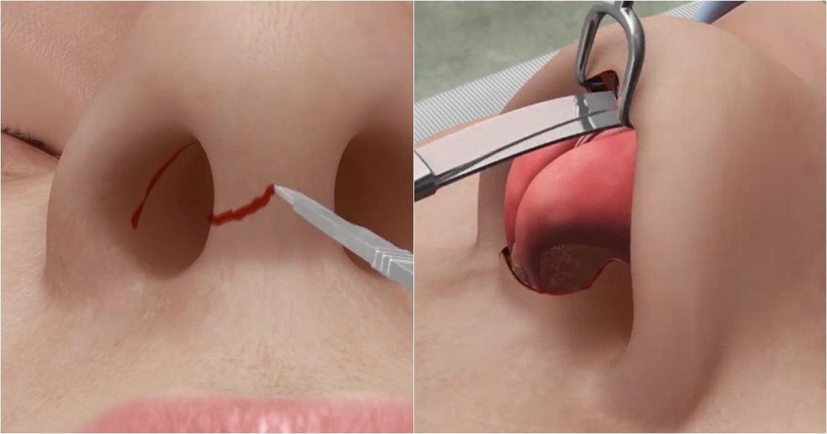 s 23.jpg?resize=1200,630 - 코 성형한 적 없는 사람도 보면 살 떨린다는 코 성형 수술 과정 (영상)