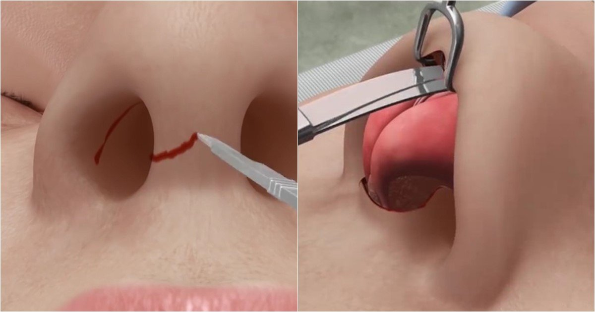 s 23.jpg?resize=412,232 - Seeing This Will Make You Think Twice About Getting A Nose Job