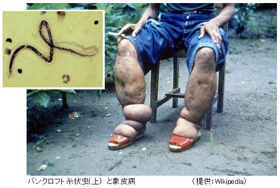 フィラリア 足에 대한 이미지 검색결과