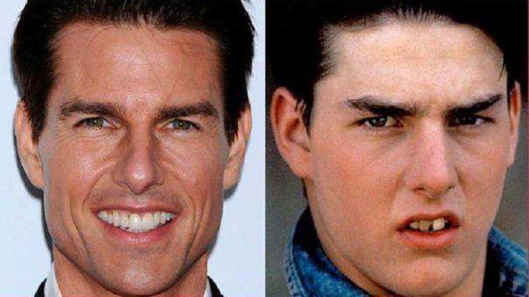 tom cruise celebrities having fake teeth amazingplace2travel.jpg?resize=636,358 - 10 celebridades que possuem dentes falsos