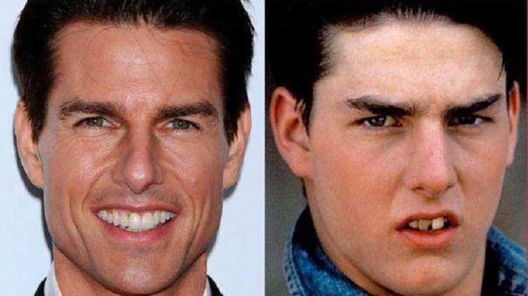 tom cruise celebrities having fake teeth amazingplace2travel.jpg?resize=648,365 - 10 celebridades que possuem dentes falsos