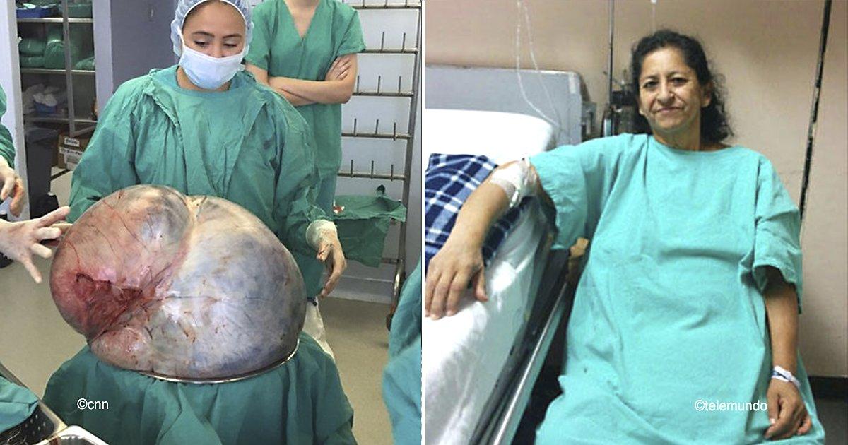 tumor.jpg?resize=648,365 - Le extrajeron un tumor ovarístico de 60 kilos, la vida de esta mujer de 38 años cambió por completo
