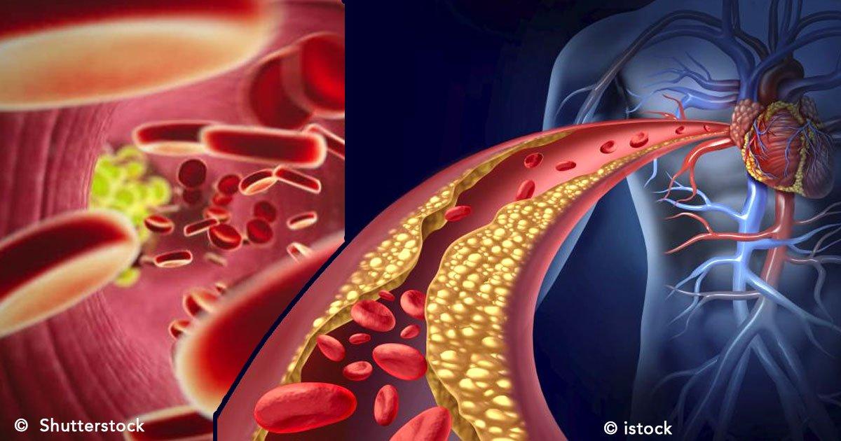 untitled 1 144.jpg?resize=412,232 - Colesterol alto: síntomas y sus consecuencias