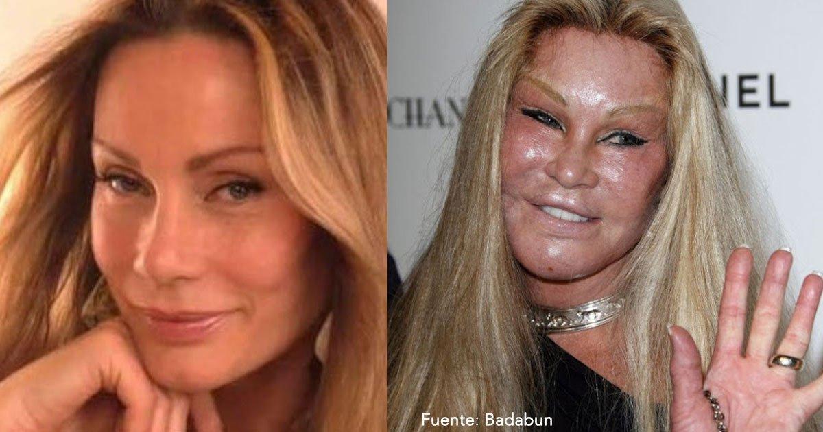 untitled 1 34.jpg?resize=300,169 - 12 casos en que la cirugía arruinó por completo el rostro de las celebridades