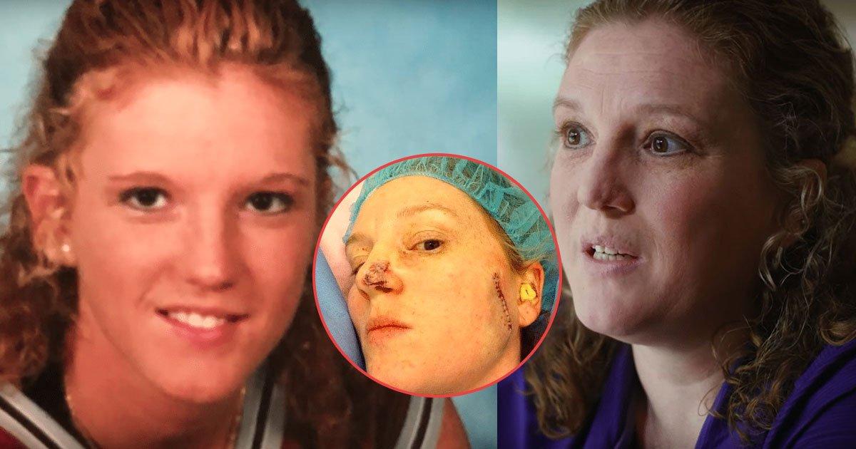 untitled 1 39.jpg?resize=1200,630 - De joven era adicta al bronceado, pasó por más de 86 cirugías por el cáncer de piel y hoy con 40 años comparte su experiencia