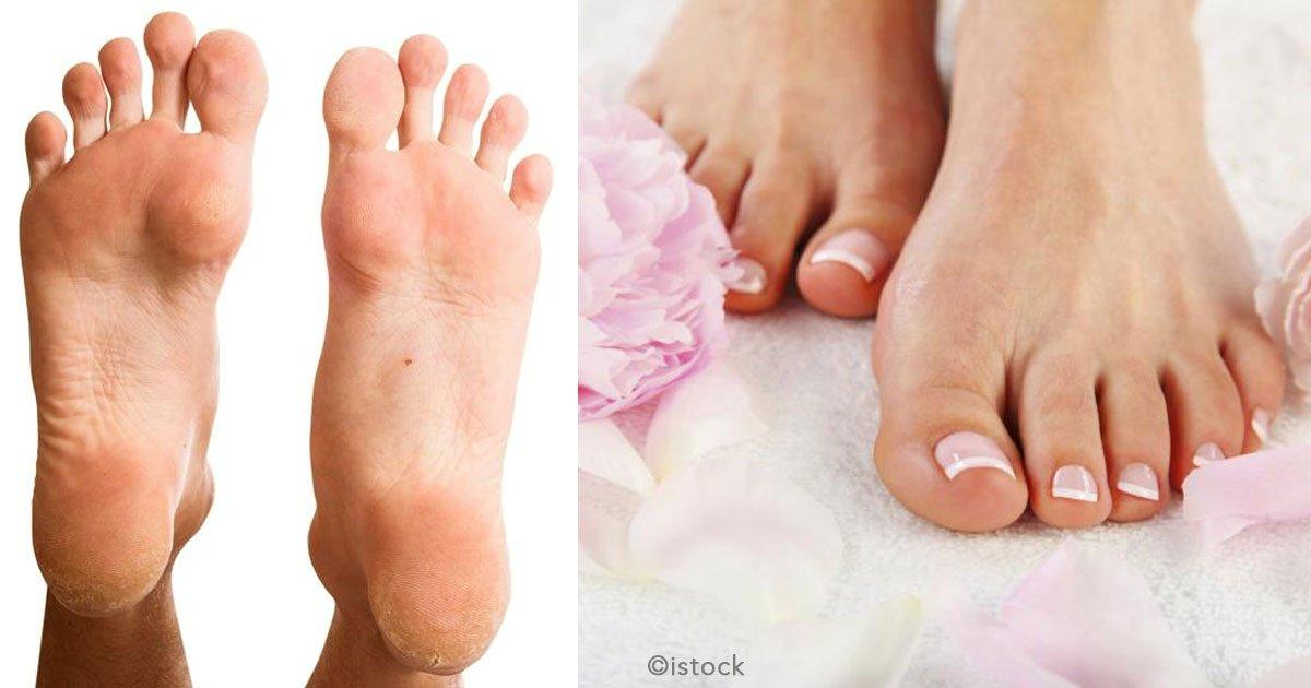 untitled 1 64.jpg?resize=648,365 - Olvídate de los callos en los pies con estos 9 remedios caseros y naturales sumamente efectivos.