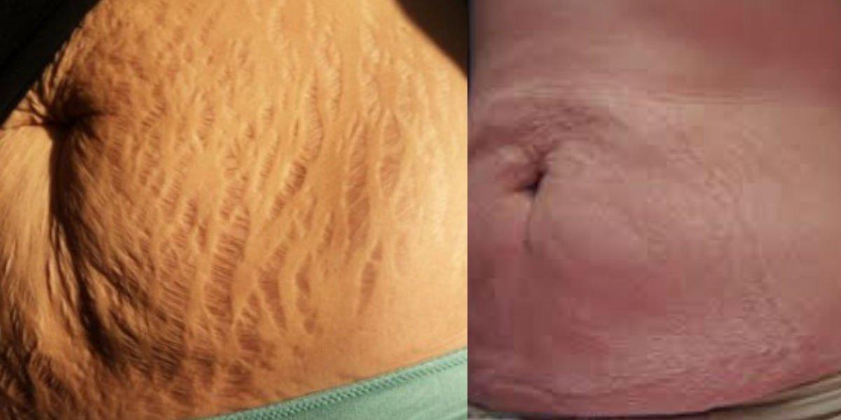 1 353.jpg?resize=300,169 - 妊娠と出産を繰り返した女性が公開したお腹に残っている鮮明な妊娠線