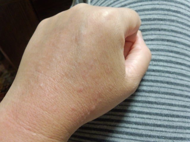 「日光湿疹」の画像検索結果