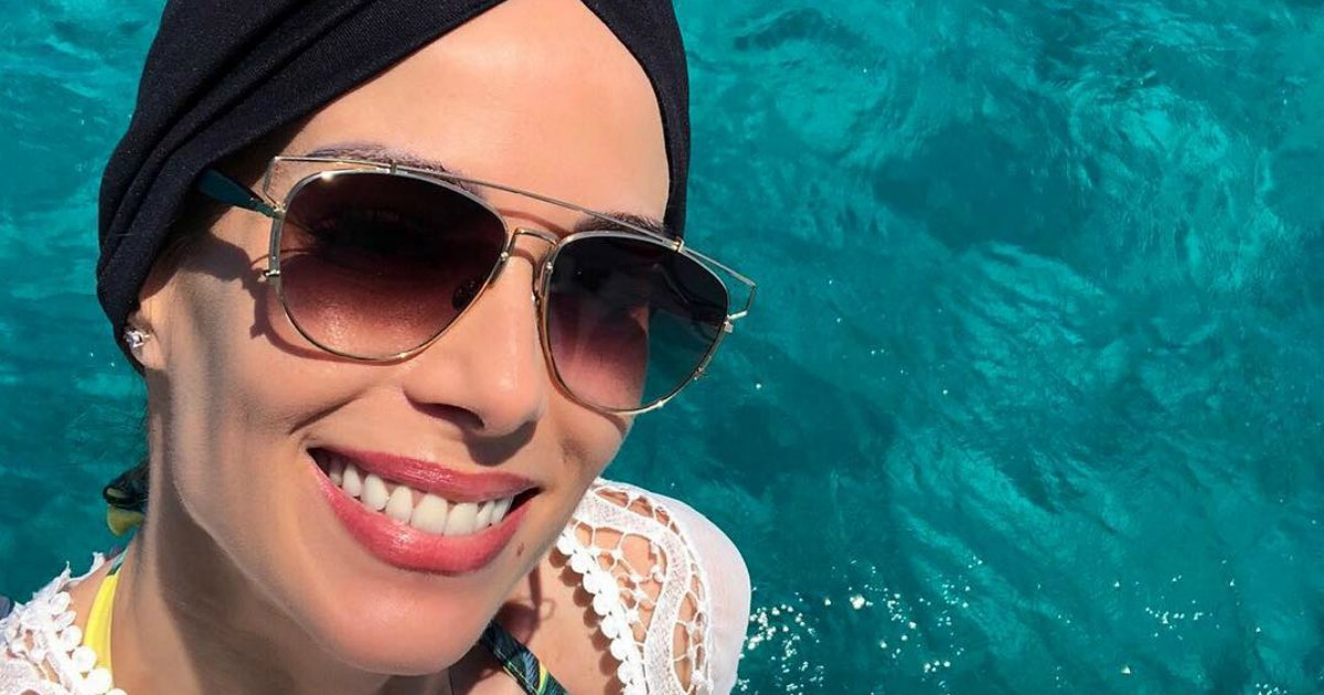 anafurtado.png?resize=1200,630 - Foto de Ana Furtado deixa fãs apreensivos com possível queda de cabelo