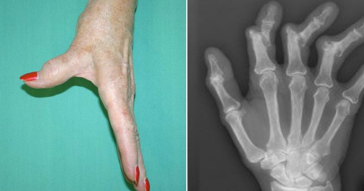 arthritis.jpg?resize=412,232 - 5 Early Signs Of Arthritis People Should Be Aware Of